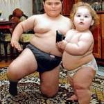Obesidad en la infancia, consecuencias toda la vida