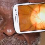 Enfermedades oculares podrán ser diagnosticadas mediante el uso de smartphones