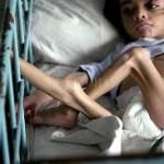 El Gobierno detectó 75.000 niños con desnutrición crónica y ampliará el programa de la AUH